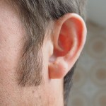 Entrevista: Especialista fala sobre a cera de ouvido